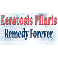 Keratosis Pilaris Remedy Forever