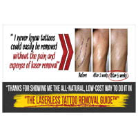 Laserlesstattooremoval.com Coupons & Promo codes