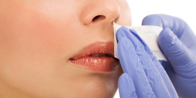 Upper lip 1